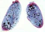 Pierwotniaki i organizmy jednokomórkowe